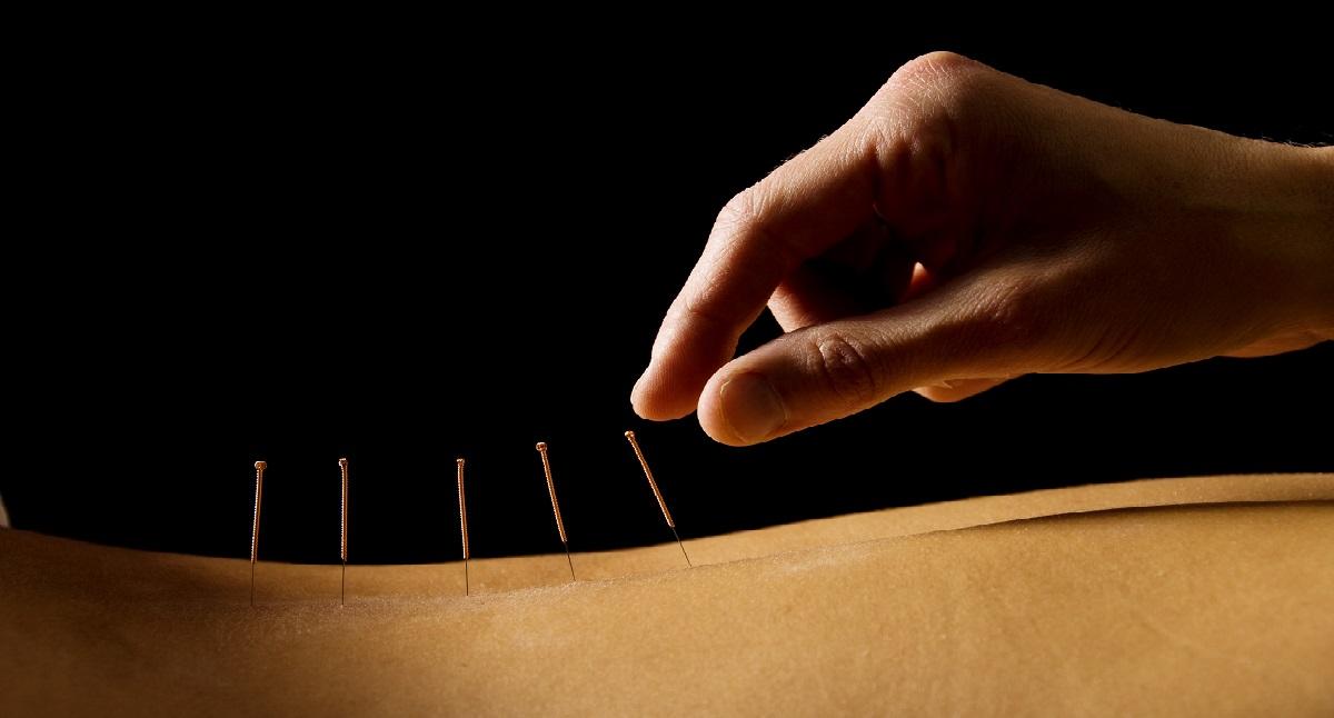Akupunktūra – gydymo būdas, kuris veiksmingas tūkstantmečius